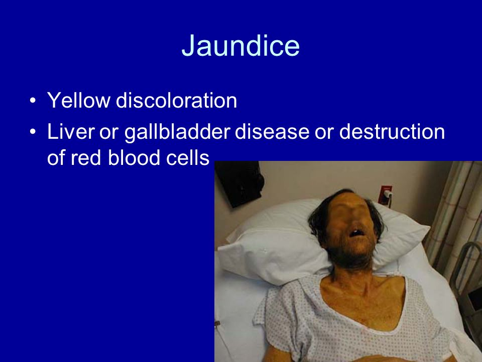 Jaundice Yellow discoloration