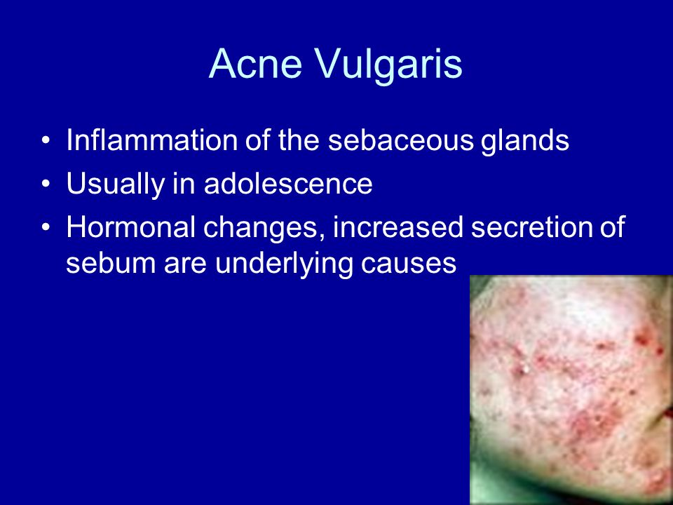 Acne Vulgaris Inflammation of the sebaceous glands
