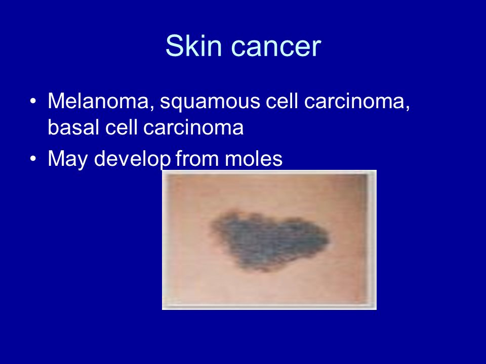 Skin cancer Melanoma, squamous cell carcinoma, basal cell carcinoma