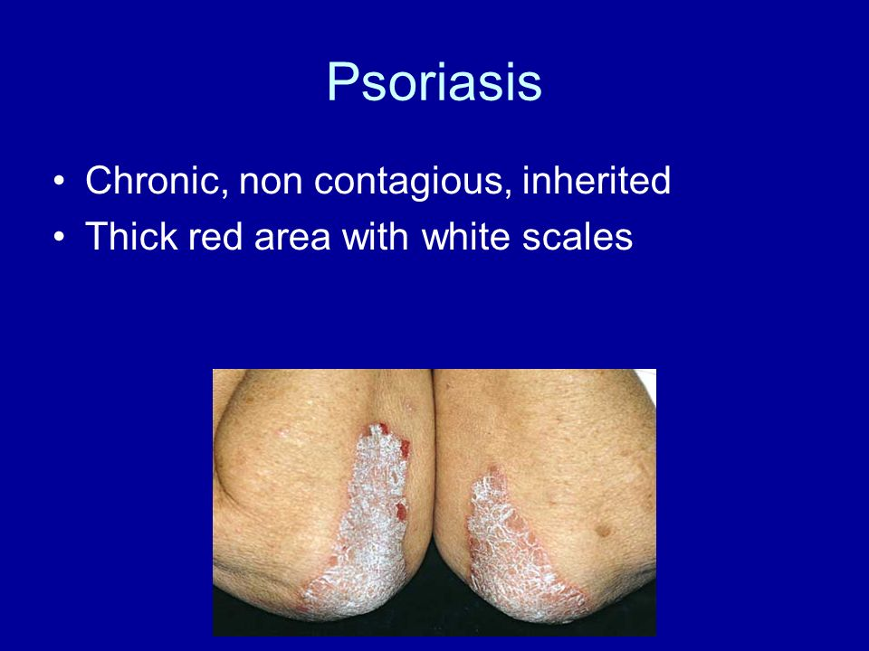 Psoriasis Chronic, non contagious, inherited