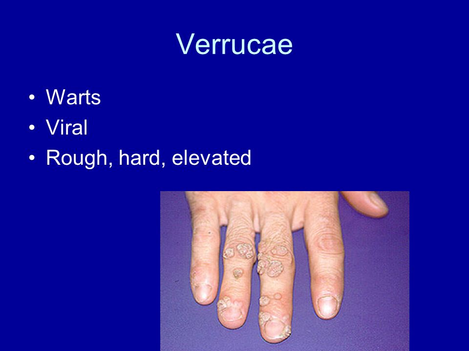Verrucae Warts Viral Rough, hard, elevated