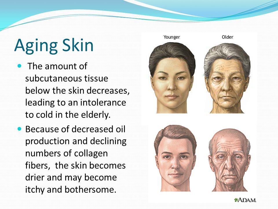 Cold Skin In Elderly