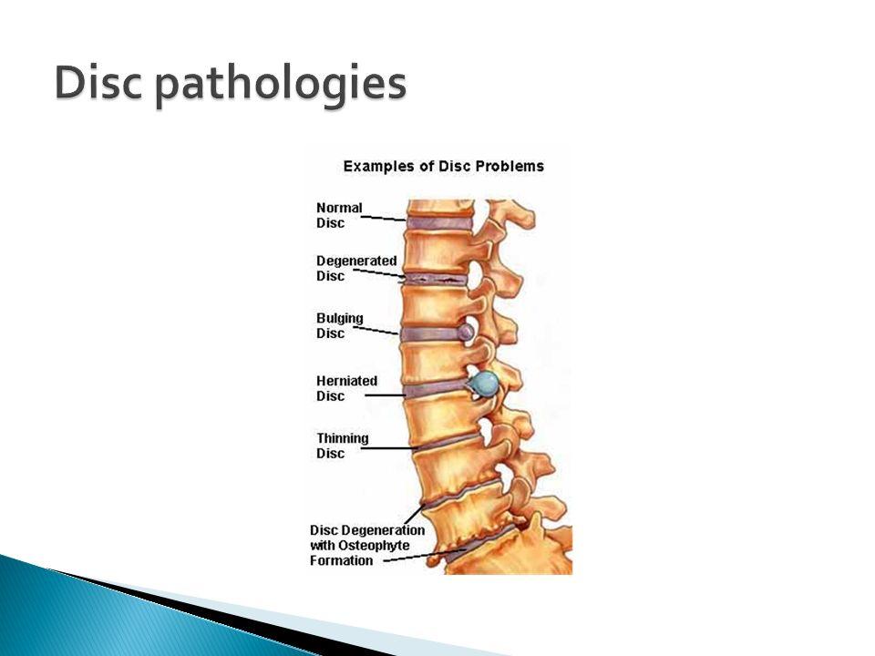 Disc pathologies
