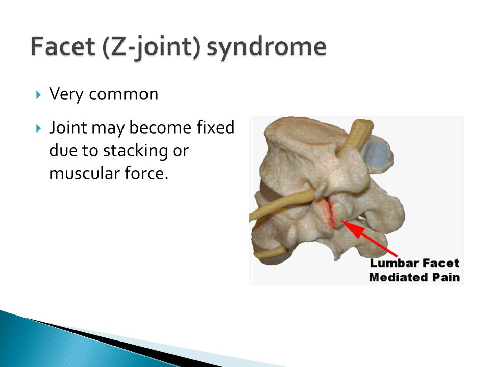 Facet (Z-joint) syndrome