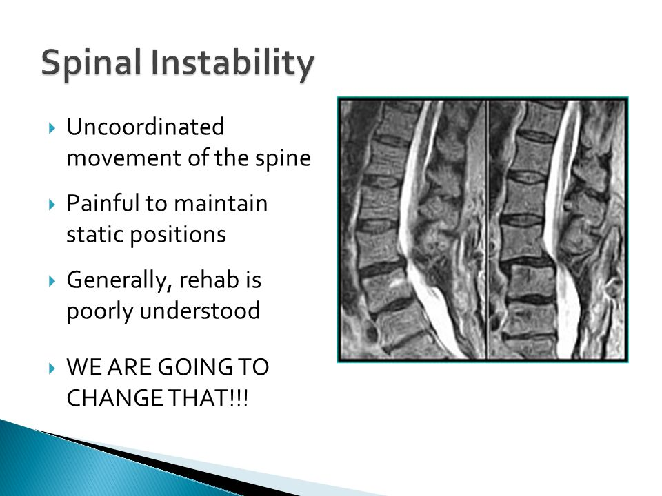 Spinal Instability Uncoordinated movement of the spine