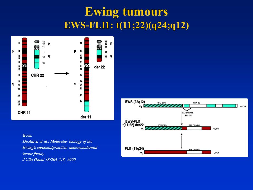 Ewing tumours EWS-FLI1: t(11;22)(q24;q12) from: