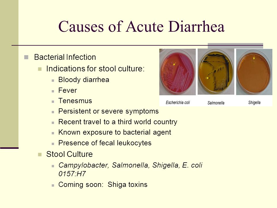 90 Do Ulcers Cause Blood In Stool Bleeding Ulcer