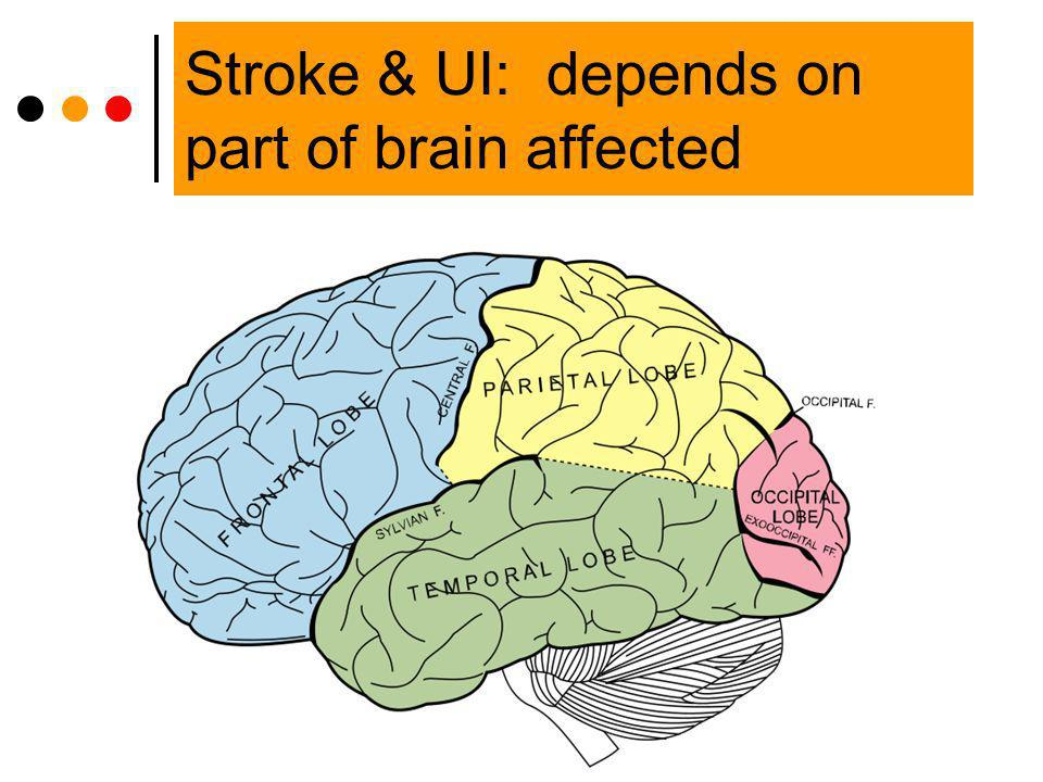 Stroke & UI: depends on part of brain affected