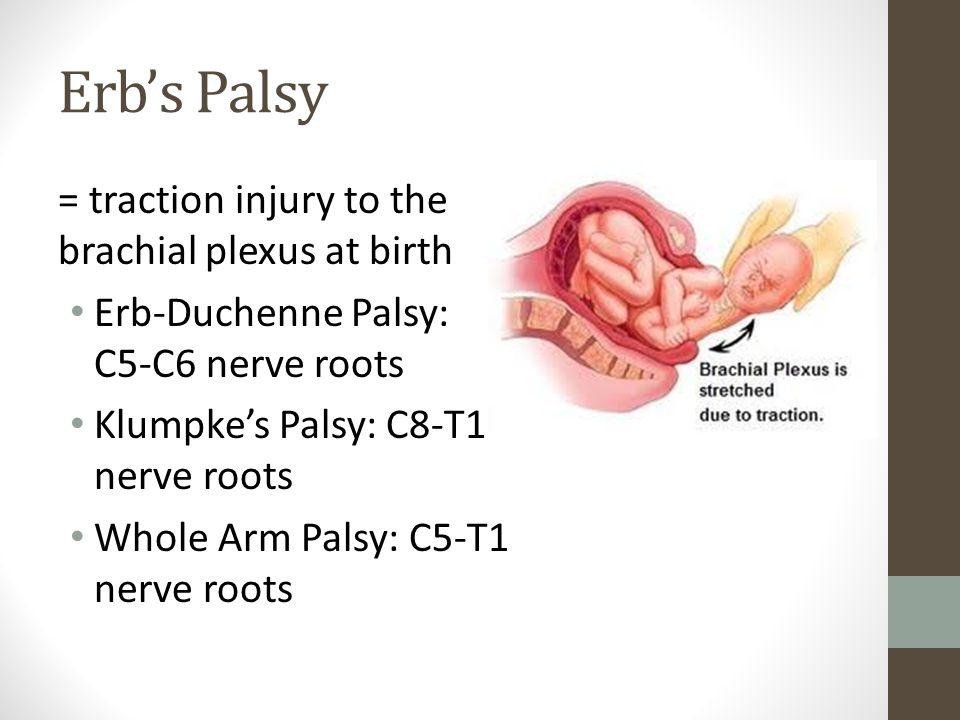 brachial plexus injury birth - photo #27