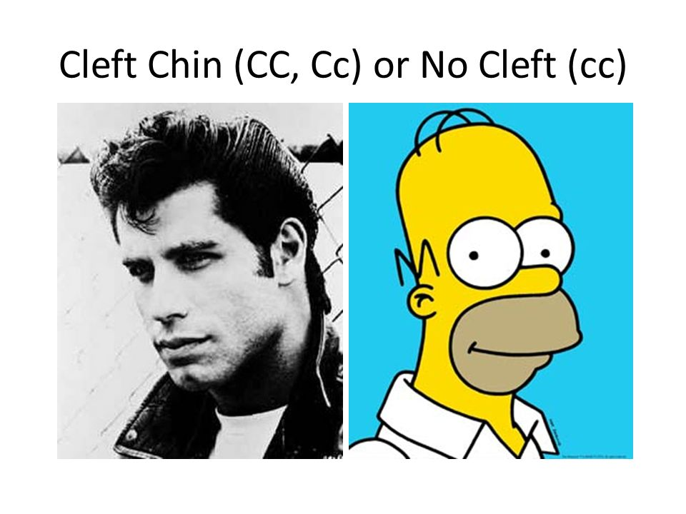 Cleft Chin (CC, Cc) or No Cleft (cc)