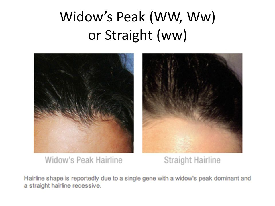 Widow's Peak (WW, Ww) or Straight (ww)
