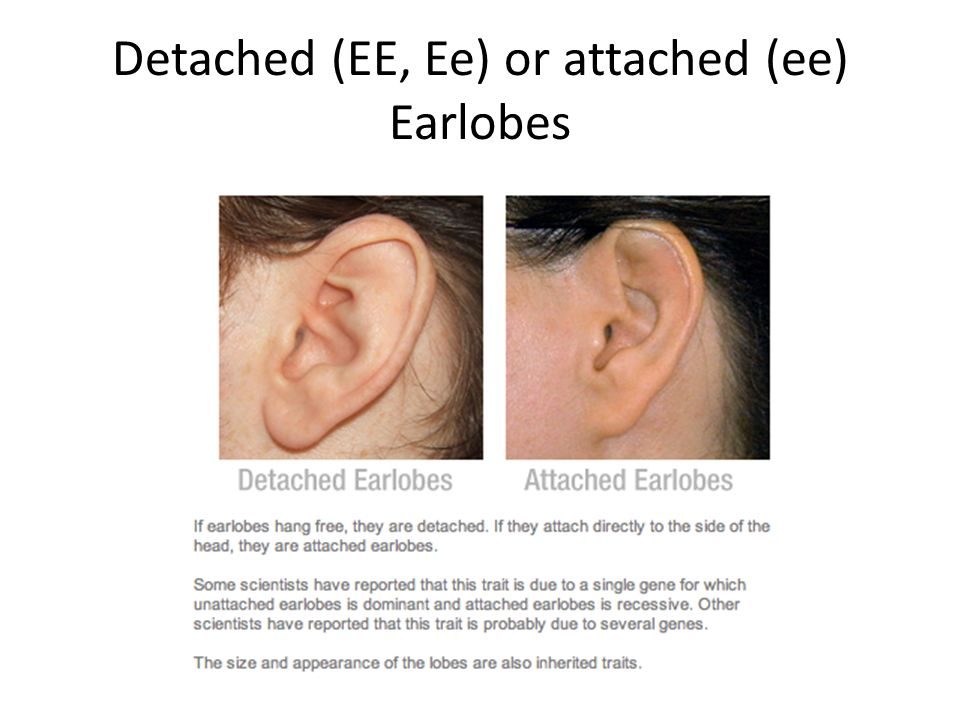 Detached (EE, Ee) or attached (ee) Earlobes