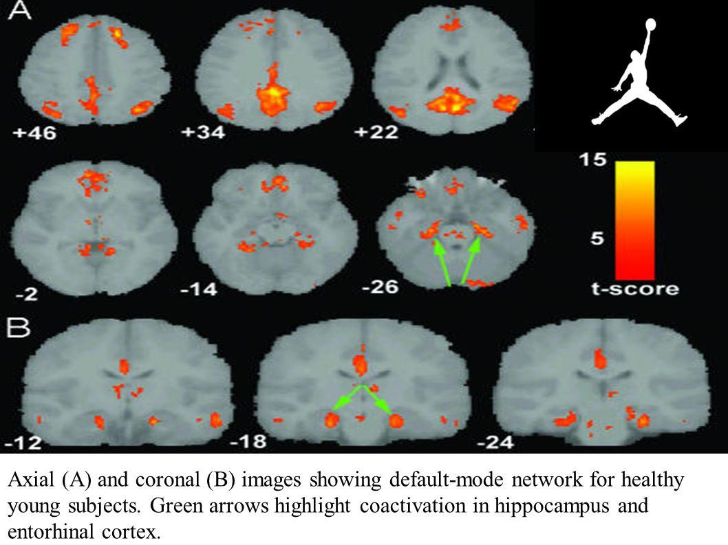 Axial (A) and coronal (B) images showing default-mode network for healthy young subjects.