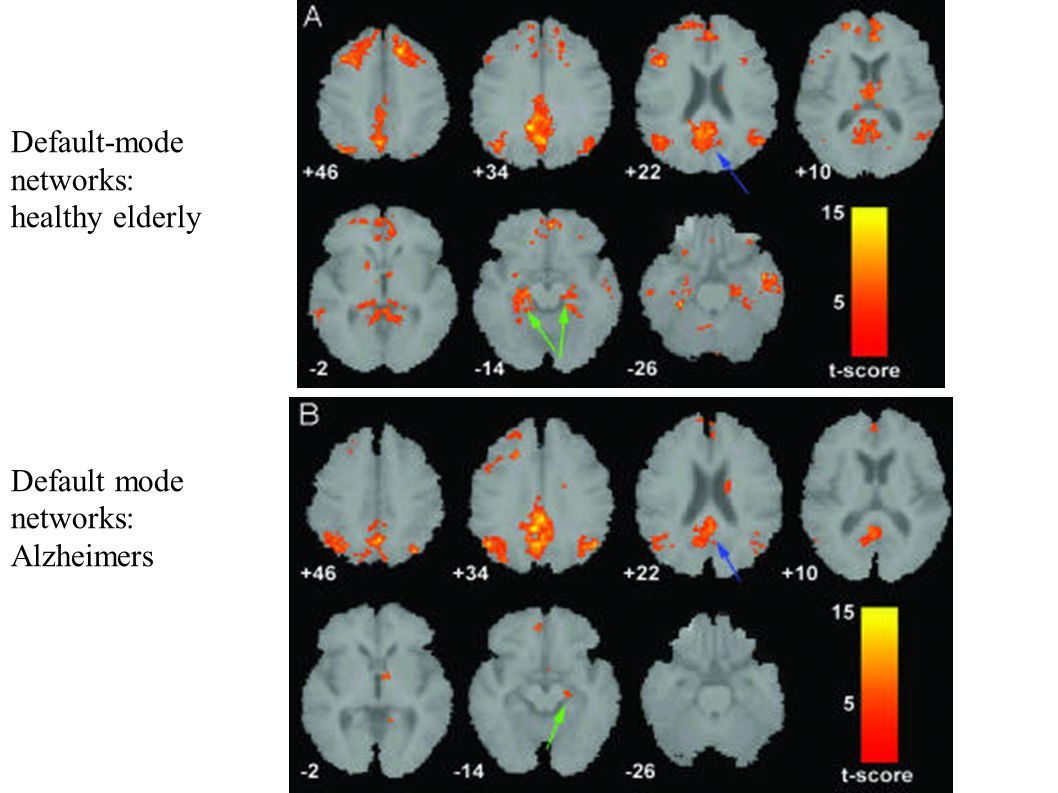 Default-mode networks: healthy elderly Default mode Alzheimers