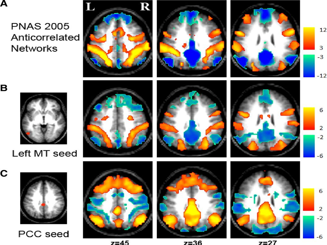 J Neurophysiol 101: 3270-3283, 2009. First published April 1, 2009; doi:10.1152/The Global Signal and Observed Anticorrelated Resting State Brain Networks