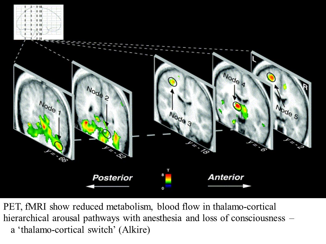 PET, fMRI show reduced metabolism, blood flow in thalamo-cortical hierarchical arousal pathways with anesthesia and loss of consciousness –