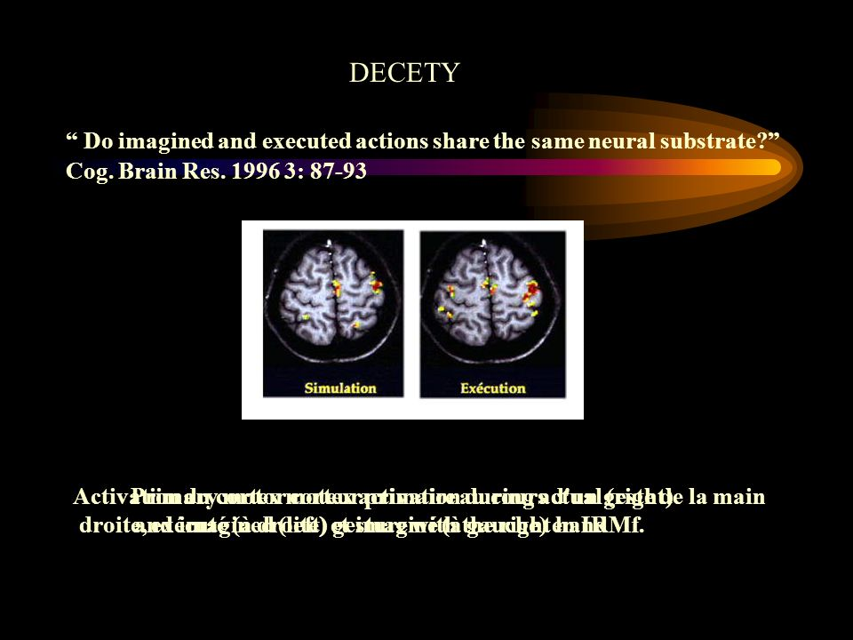 Primary motor cortex activation during actual (right)