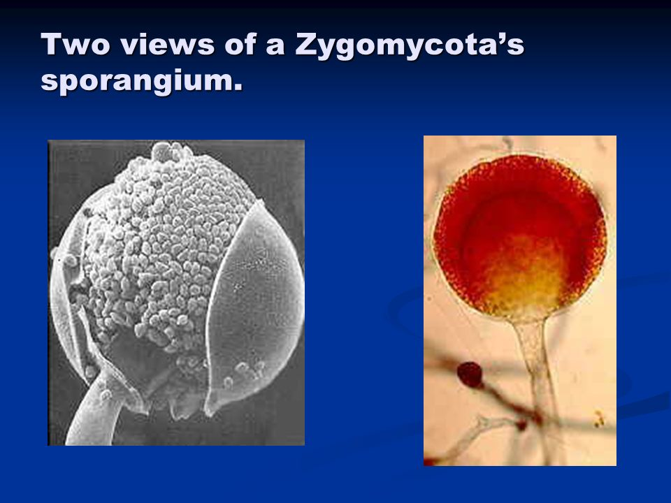 Two views of a Zygomycota's sporangium.