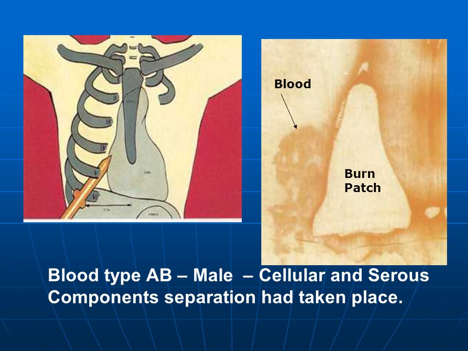 Blood type AB – Male – Cellular and Serous