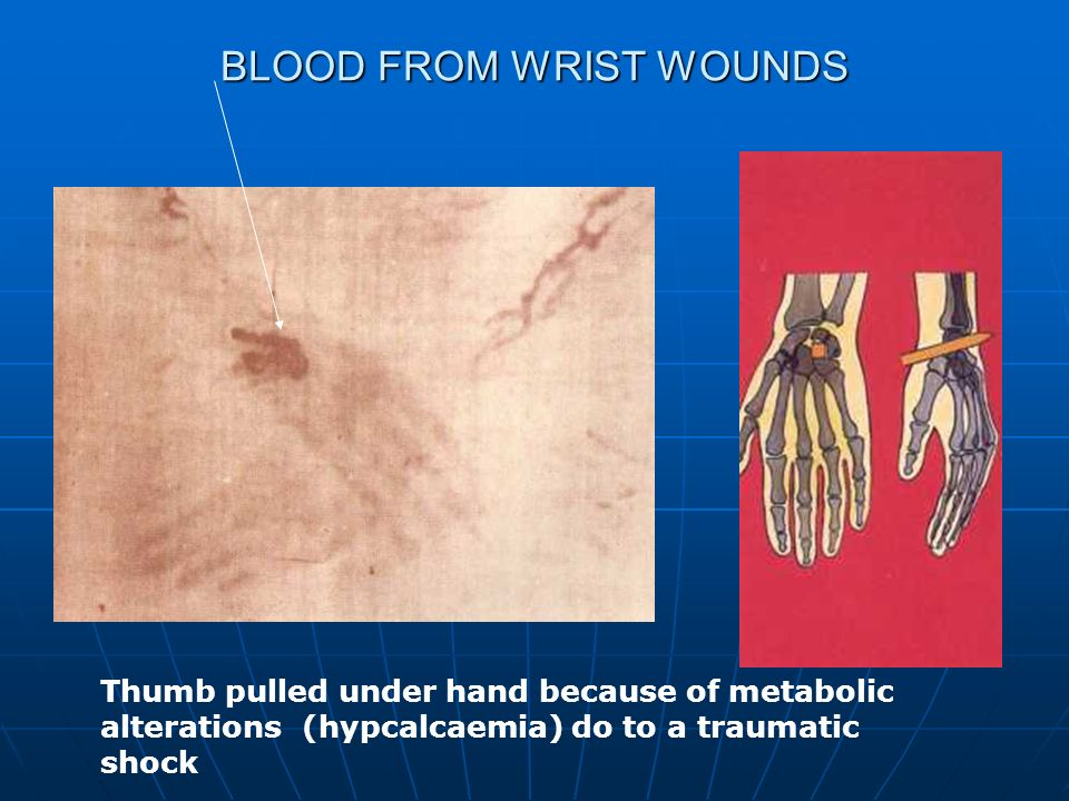 BLOOD FROM WRIST WOUNDS