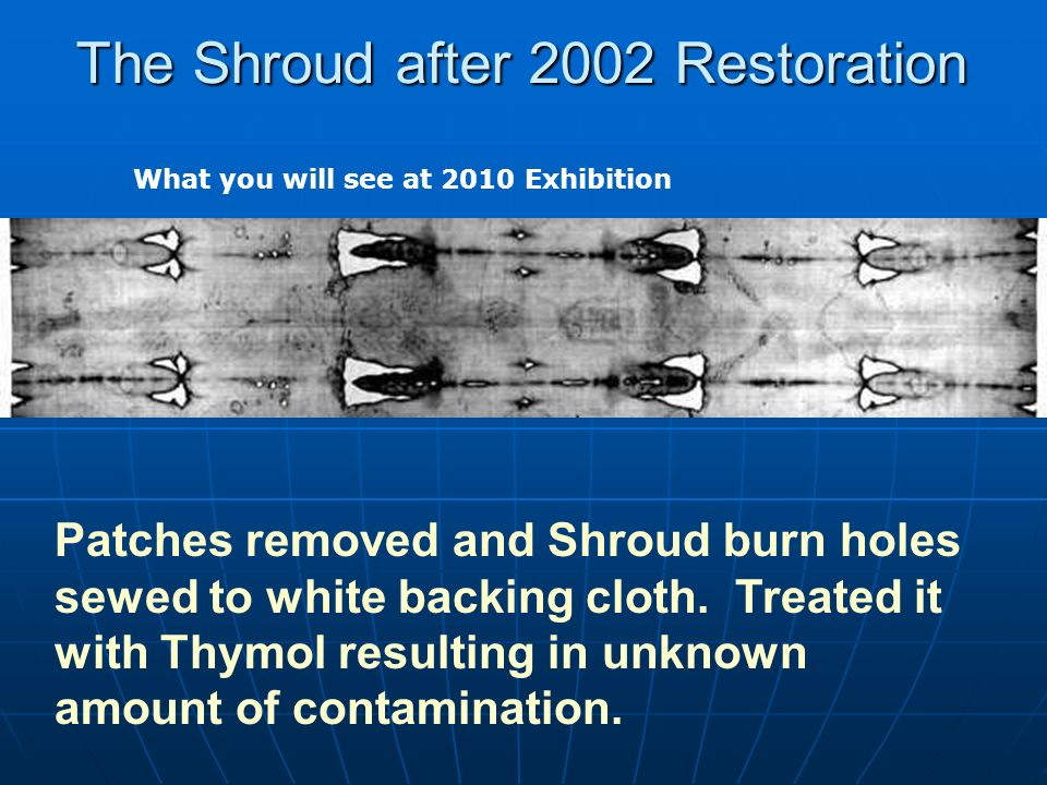The Shroud after 2002 Restoration