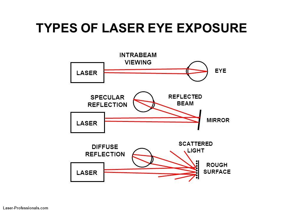 TYPES OF LASER EYE EXPOSURE