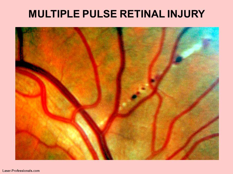 MULTIPLE PULSE RETINAL INJURY