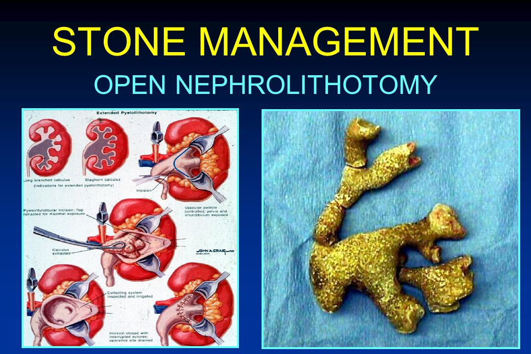 STONE MANAGEMENT OPEN NEPHROLITHOTOMY