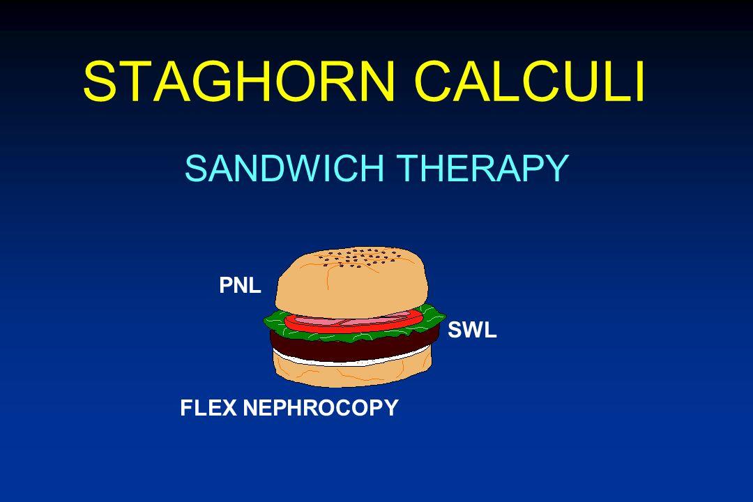 STAGHORN CALCULI SANDWICH THERAPY PNL SWL FLEX NEPHROCOPY