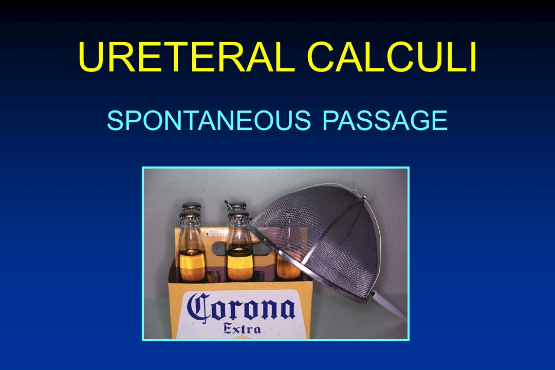 URETERAL CALCULI SPONTANEOUS PASSAGE