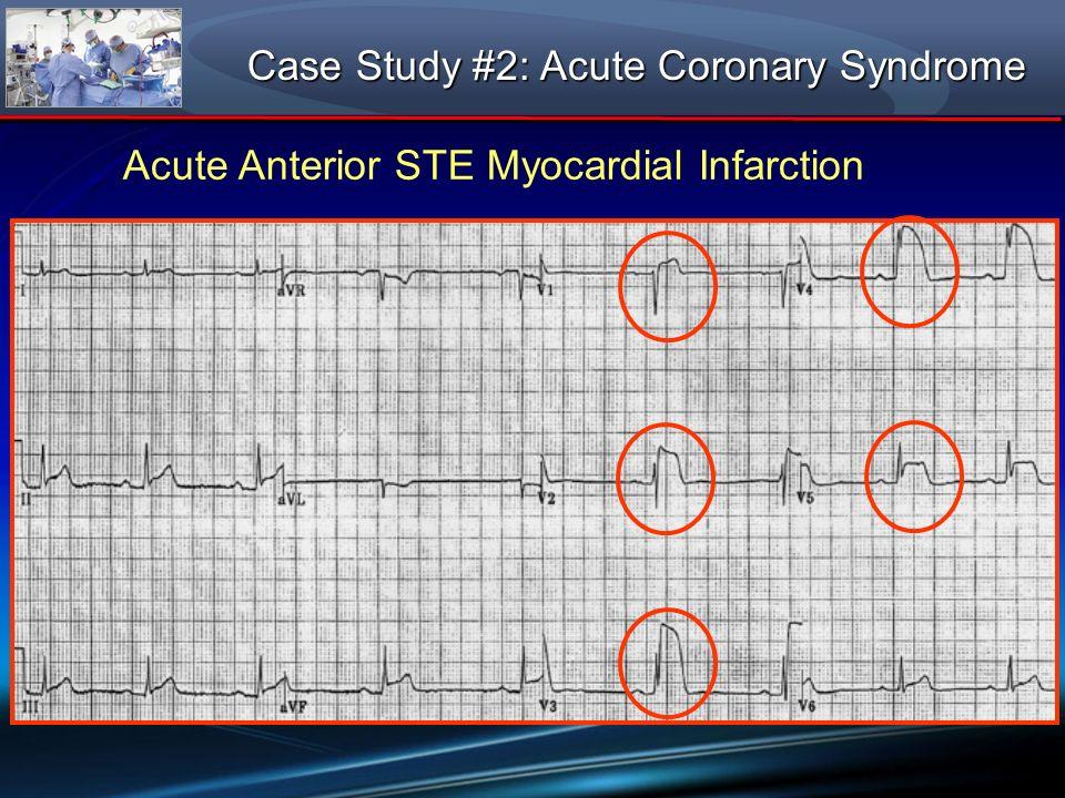 Case Study #2: Acute Coronary Syndrome