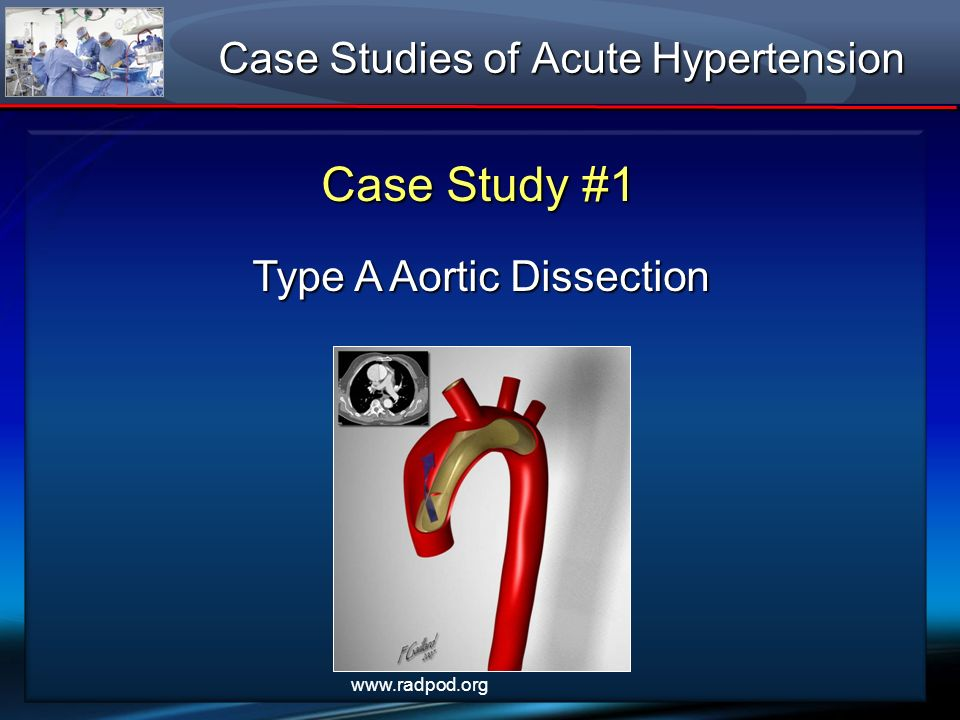 Hypertension clinical case studies