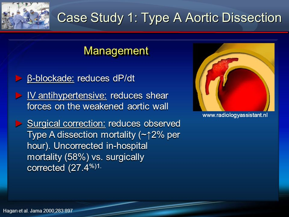 Case Study 1: Type A Aortic Dissection