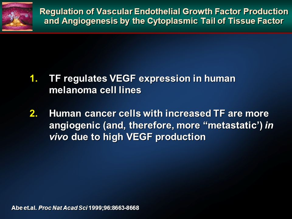 TF regulates VEGF expression in human melanoma cell lines