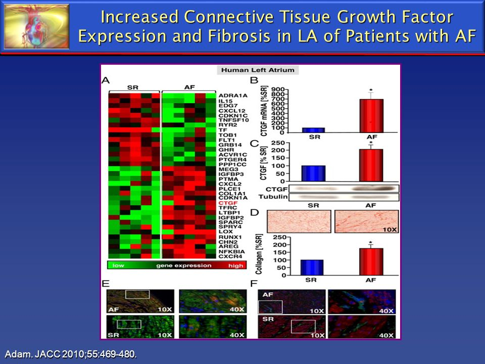Increased Connective Tissue Growth Factor Expression and Fibrosis in LA of Patients with AF