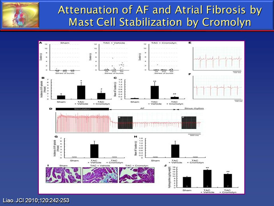 Attenuation of AF and Atrial Fibrosis by Mast Cell Stabilization by Cromolyn