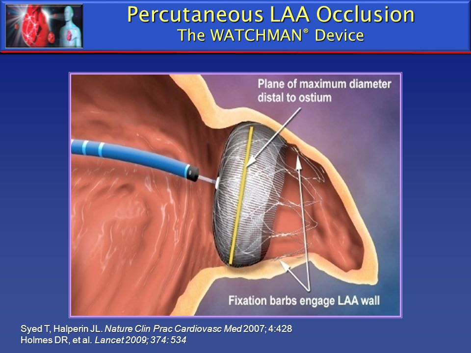 Percutaneous LAA Occlusion The WATCHMAN® Device