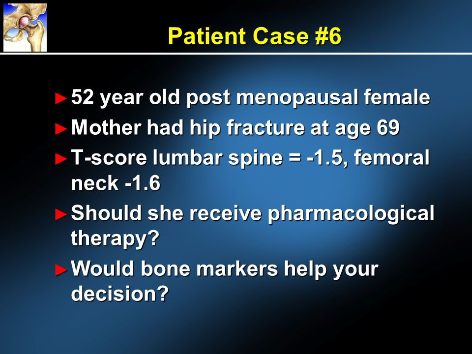 Patient Case #6 52 year old post menopausal female