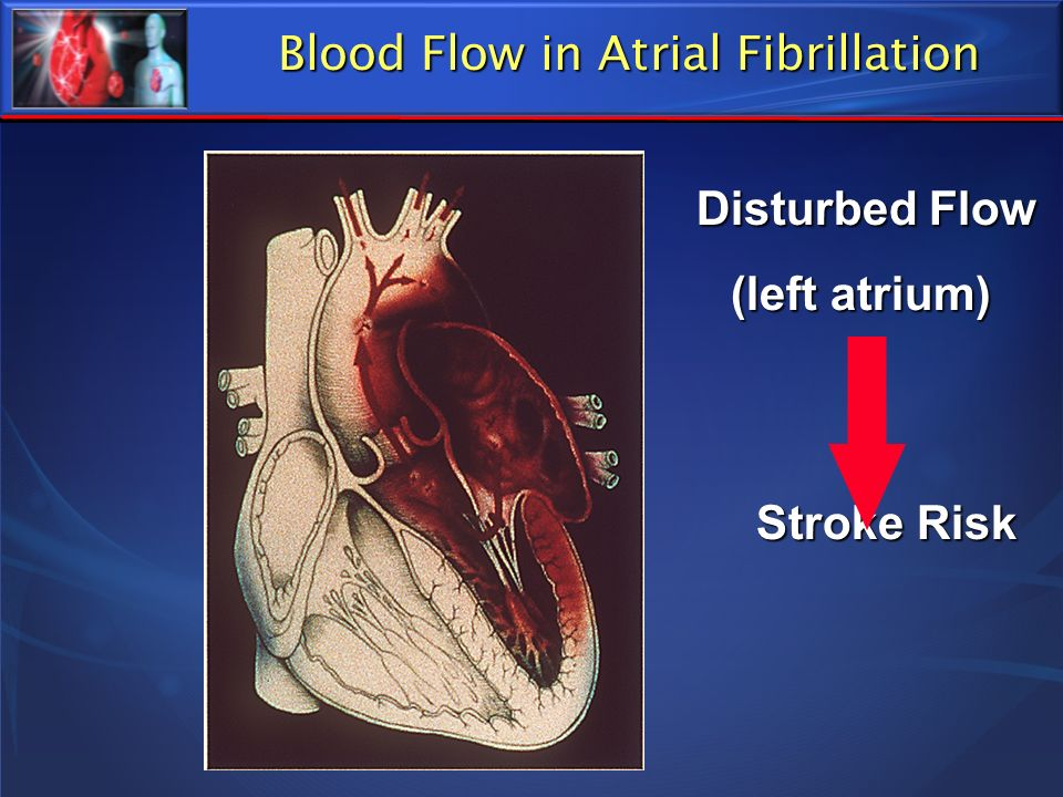 Blood Flow in Atrial Fibrillation