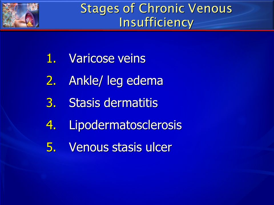 Stages of Chronic Venous Insufficiency