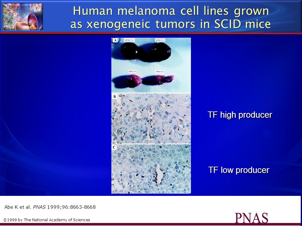 Human melanoma cell lines grown as xenogeneic tumors in SCID mice