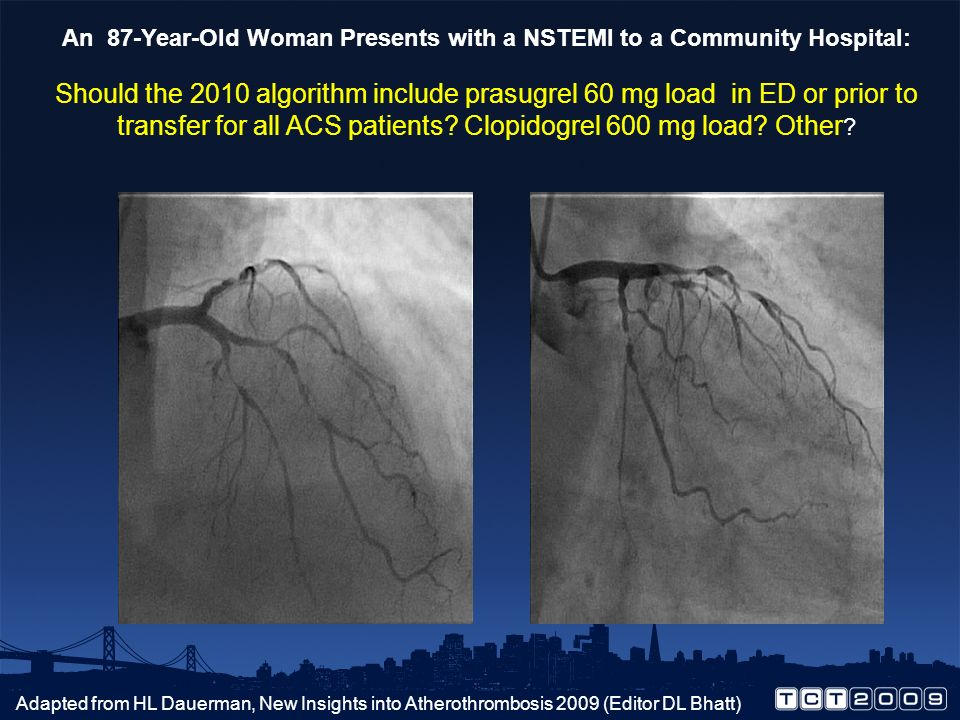 An 87-Year-Old Woman Presents with a NSTEMI to a Community Hospital: