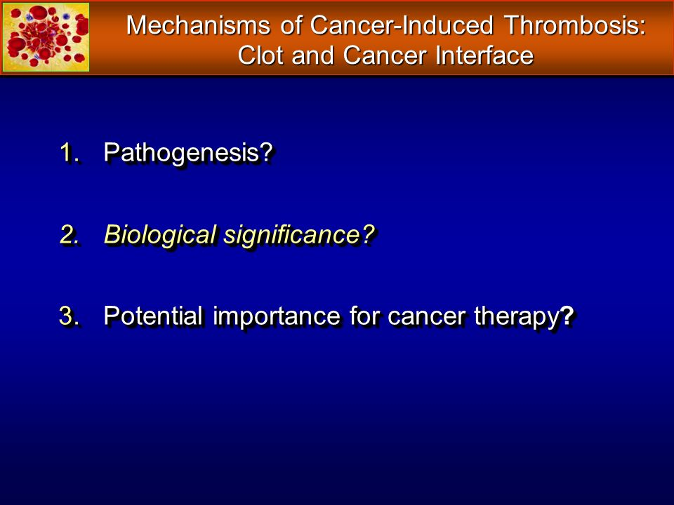 Mechanisms of Cancer-Induced Thrombosis: Clot and Cancer Interface