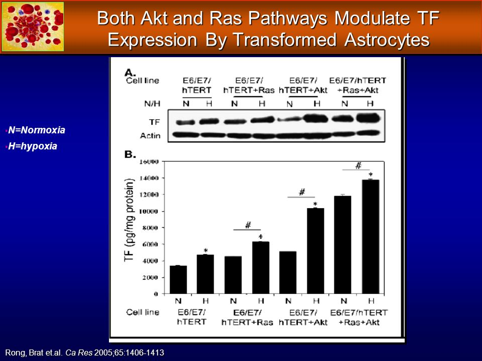 Both Akt and Ras Pathways Modulate TF Expression By Transformed Astrocytes