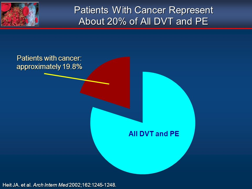 Patients With Cancer Represent About 20% of All DVT and PE