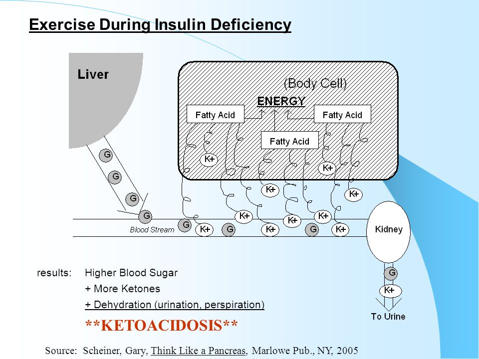 Exercise During Insulin Deficiency