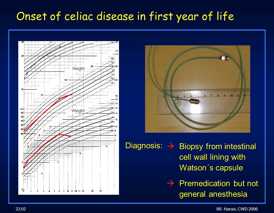 Onset of celiac disease in first year of life