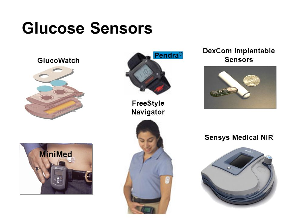 DexCom Implantable Sensors
