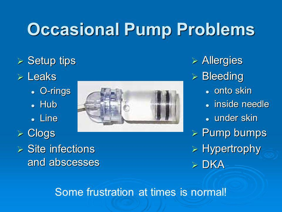 Occasional Pump Problems