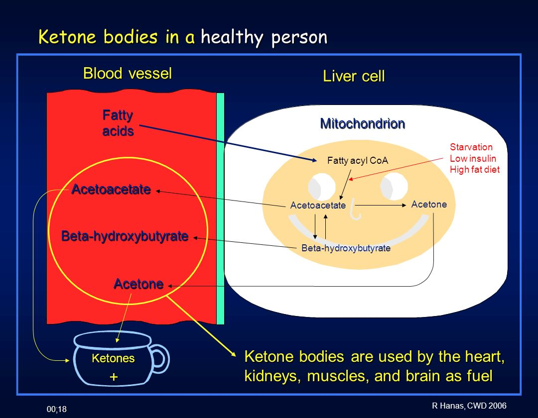 Ketone bodies in a healthy person
